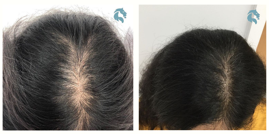 PRP-before-and-after