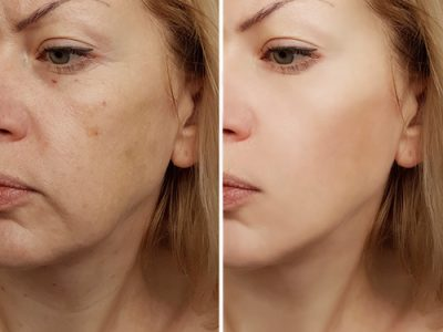 prp-before-after