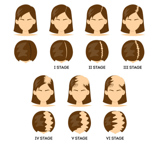 types of female pattern baldness