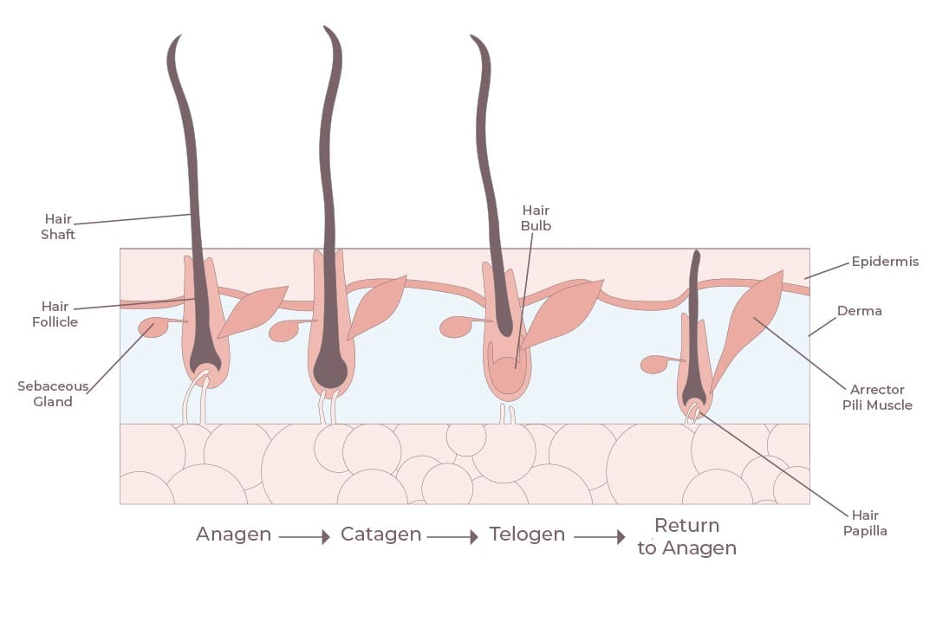 diagram of hair loss