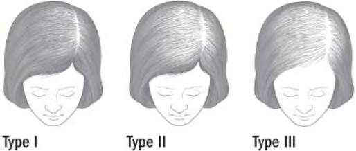 the three stages of female hair loss