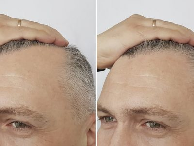 fue before and after treatment