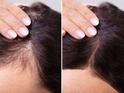fue female before and after