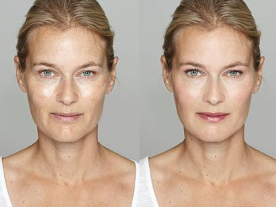 prp-therapy-skin-before-after-1